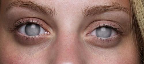 ฝันว่าตาบอด ฝันเห็นตัวเองตาบอด ผลคำทำนายฝัน